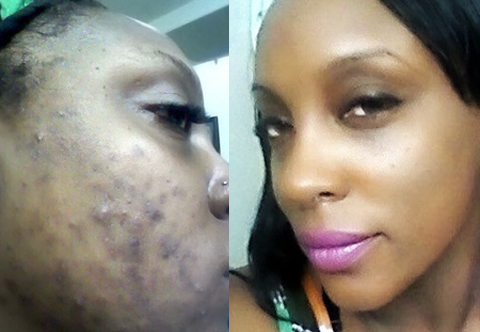 Black Skin Disease A Series of Articles  PCOC